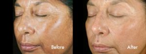 Before and After: Chemical Peel