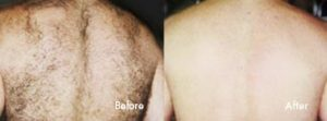 Laser Hair Removal Before & After Photo - Skin Wellness Center of Alabama
