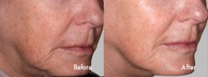 Before and After: Laser Skin Tightening
