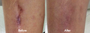 Scar Reduction before and after