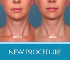 New Procedure: Kybella