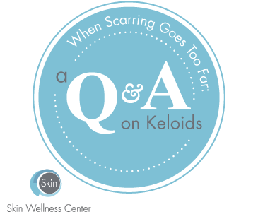 When Scarring Goes Too Far: A Q&A on Keloids