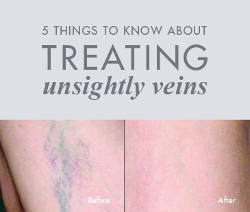 5 Things to Know About Treating Unsightly Veins
