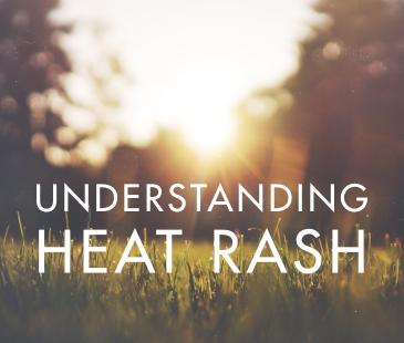 Understanding Heat Rash