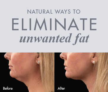 Natural Ways to Eliminate Unwanted Fat