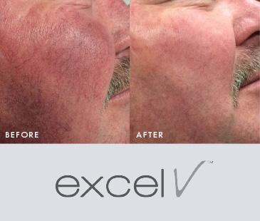 Skin Wellness: Excel V Laser