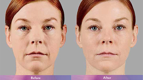 Before and After Dermal Fillers*