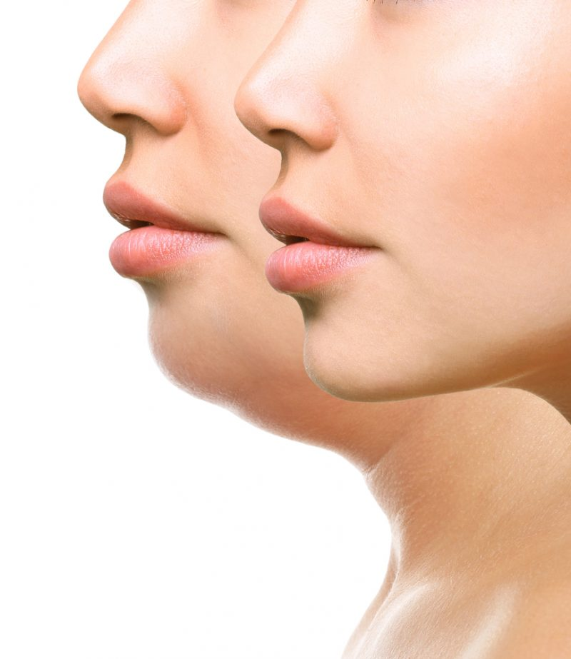 Kybella Solutions in Vestavia AL