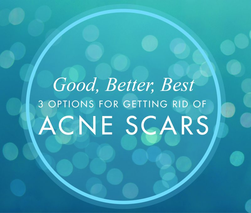 3 Options for Getting Rid of Acne Scars, Skin Wellness