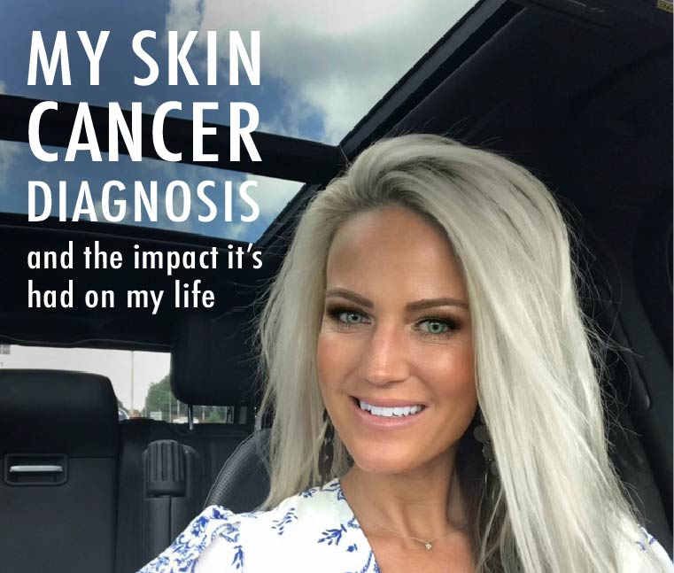 Skin Cancer Blog, Skin Wellness