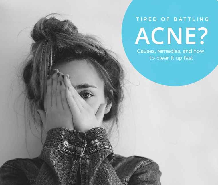 Acne: Causes, remedies, and how to clear it up fast